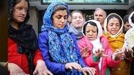جزییاتی از آخرین اقدامات درمانی دختران شین آبادی